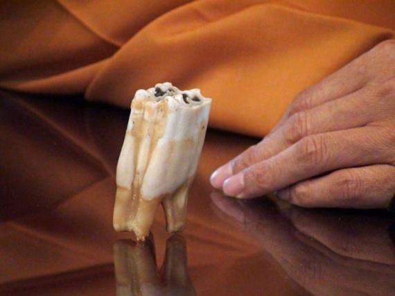Интересное: Ох уж, эти зубы