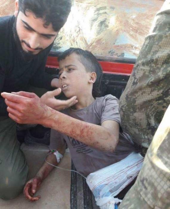 +18: Друзья Америки отрезали мальчику голову