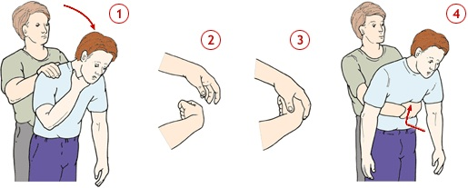 Полезные советы: Ошибки при оказание первой медицинской помощи